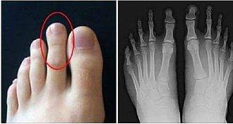 dedos del pie desiguales