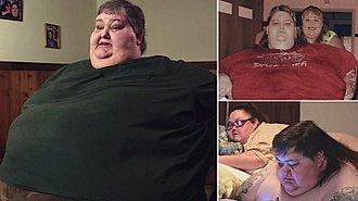 Persona Obesa