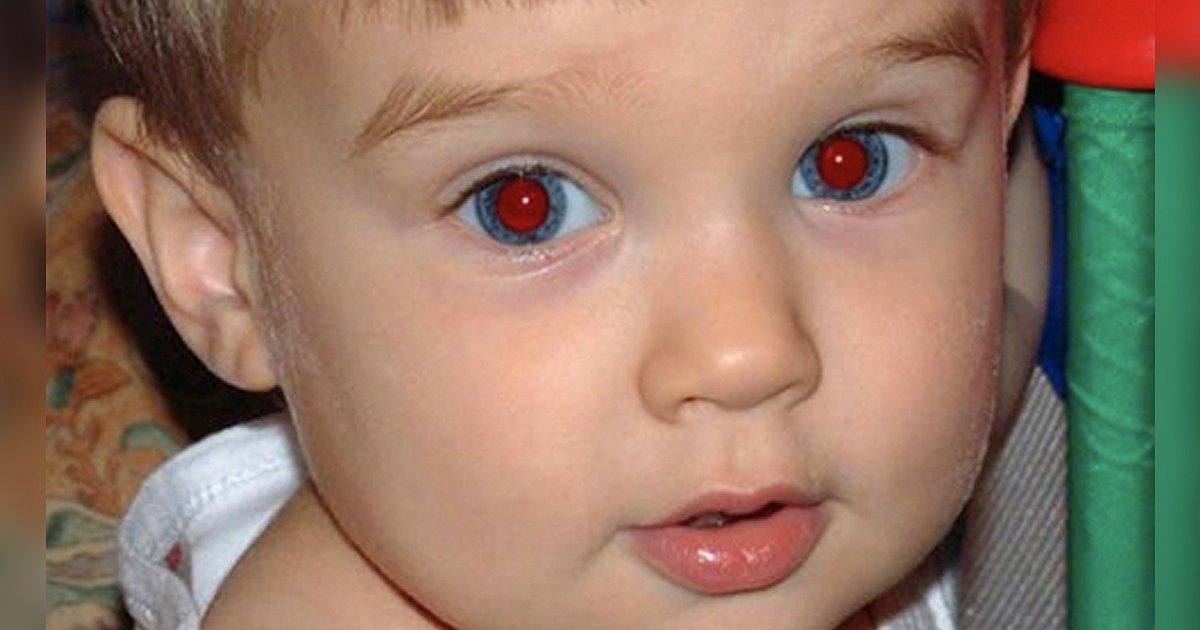 Фото человека с красными глазами после вспышки